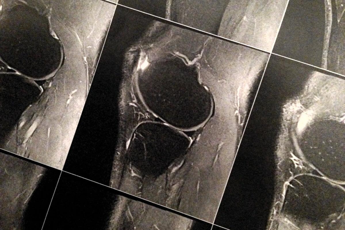 Röntgenaufnahme eines Knie-Gelenks